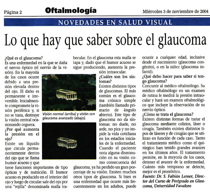 Lo que hay que saber sobre el glaucoma