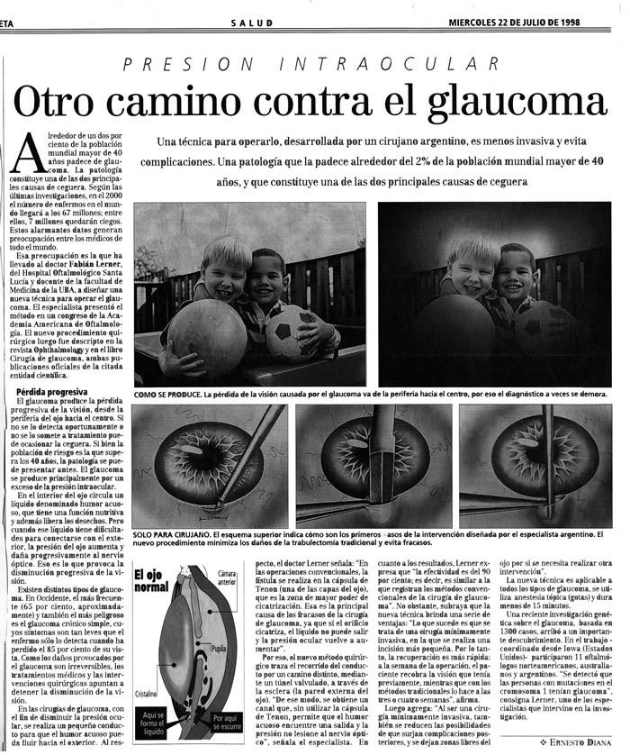 Otro camino contra el glaucoma